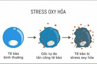 Everything You Should Know About Oxidative Stress